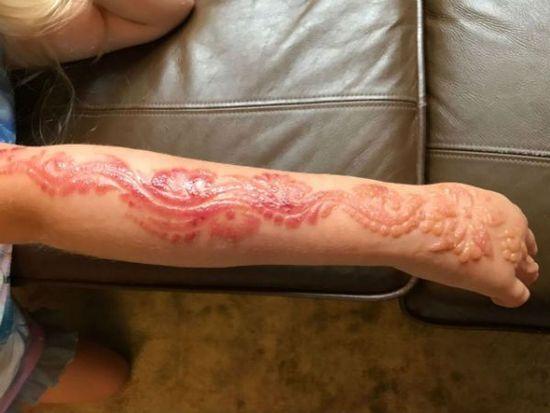 Black Henna Tattoo Burns: Parents Share Warning After Henna Tattoo Burns Their