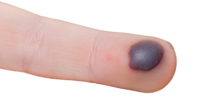 blood blister on finger