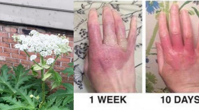 hogweed plant causes burns and blindness