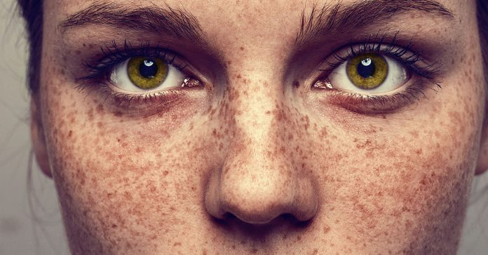 what causes freckles