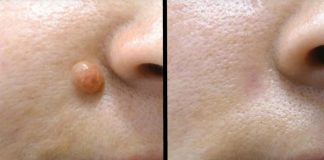 remove skin tags and moles