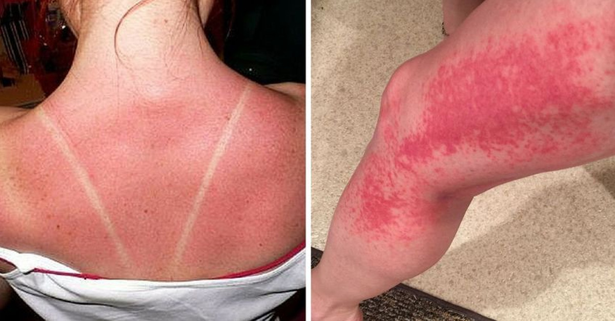 5 Silent Signs You Are Suffering From Sun Poisoning