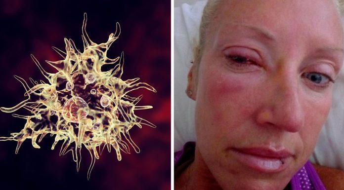 mom blind parasitic worm