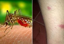 mosquito bites skeeter syndrome