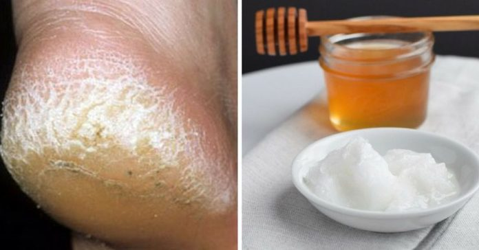 cracked heels home remedies