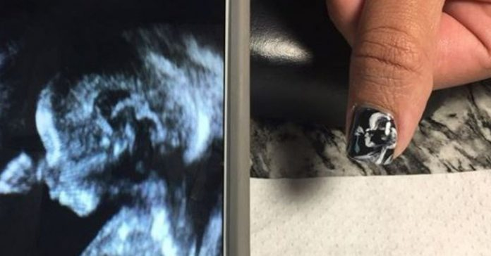 ultrasounds on nails