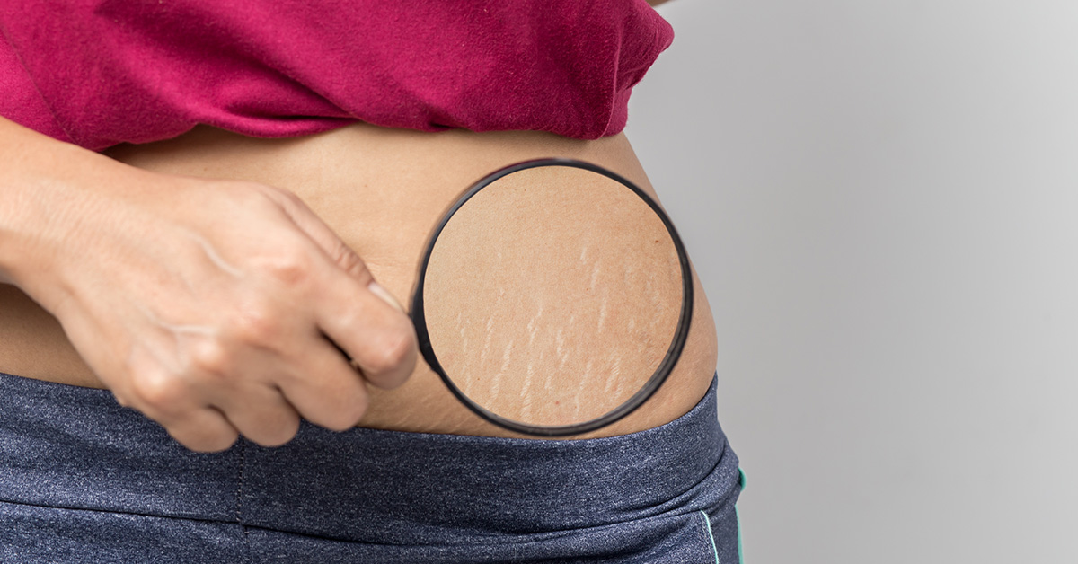 Stretch Marks Coupon Code All In One 2020