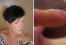 woman cancer nails facebook