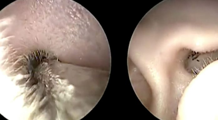 doctors yank out tick from ear