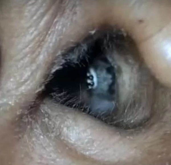 Woman Discovers Her Headaches Are Caused By A Spider Inside