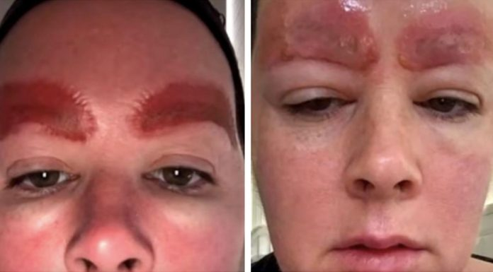 infection after microblading eyebrows