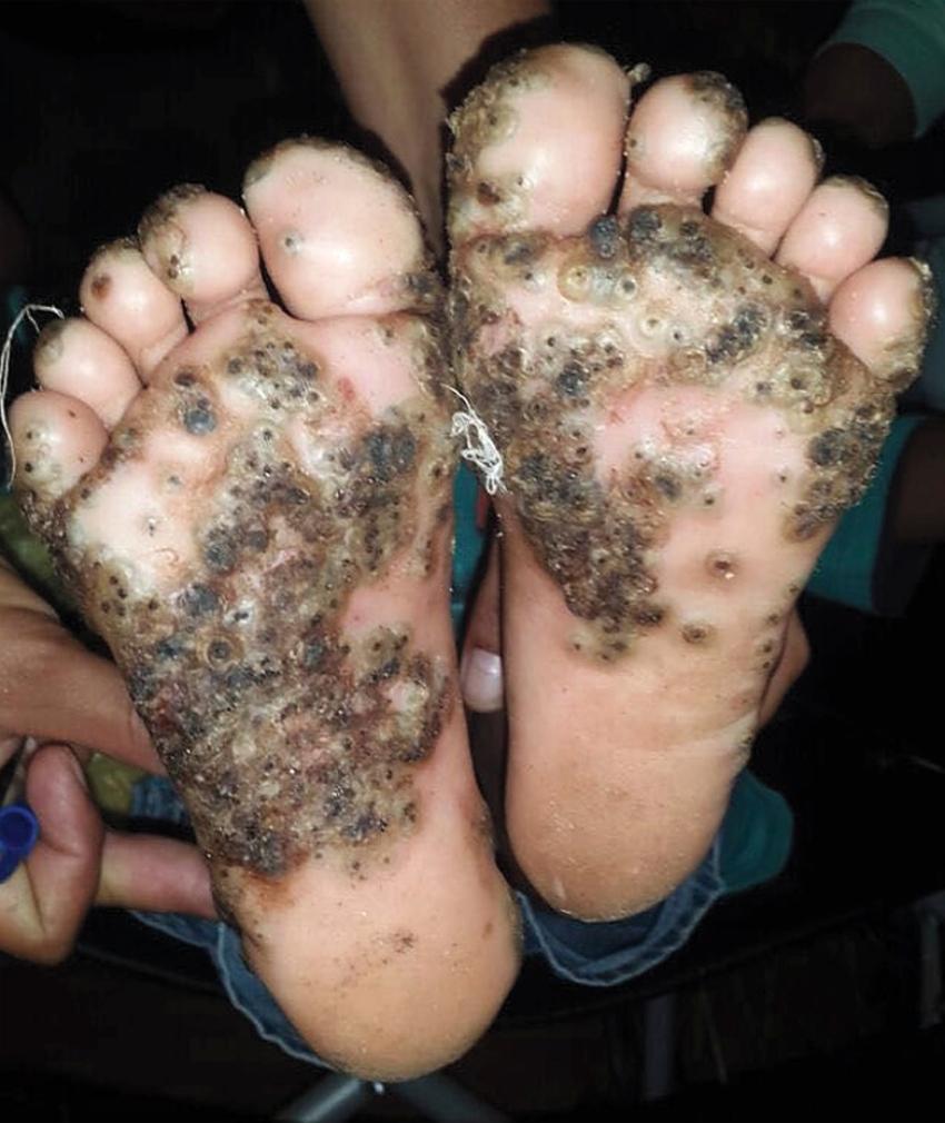 pigsty sand fleas