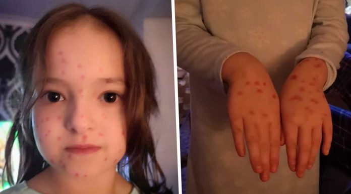 schoolgirl cheats chickenpox