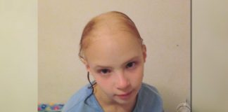 girl loses hair product