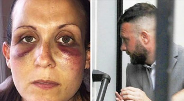 wife attacked by husband