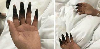 woman fingers black gangrene